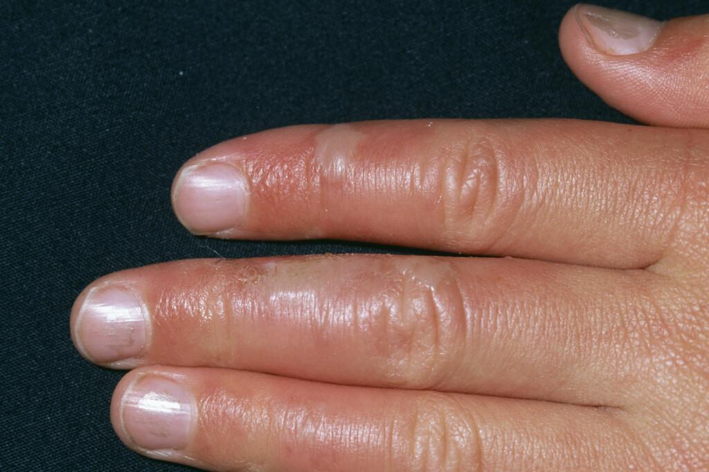 SÅR: Stafylokokkinfeksjoner karakterisert ved puss, byller og abscesser. Foto: NTB/Scanpix, Science Photo Library
