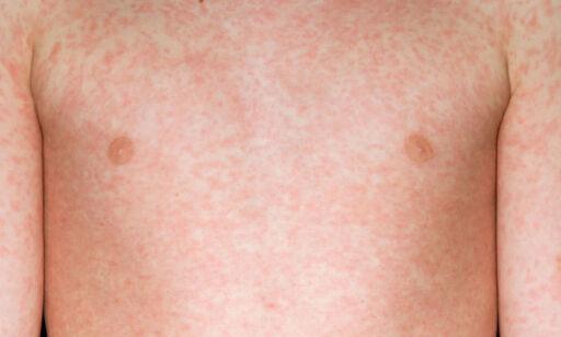 image: Dette er meslinger