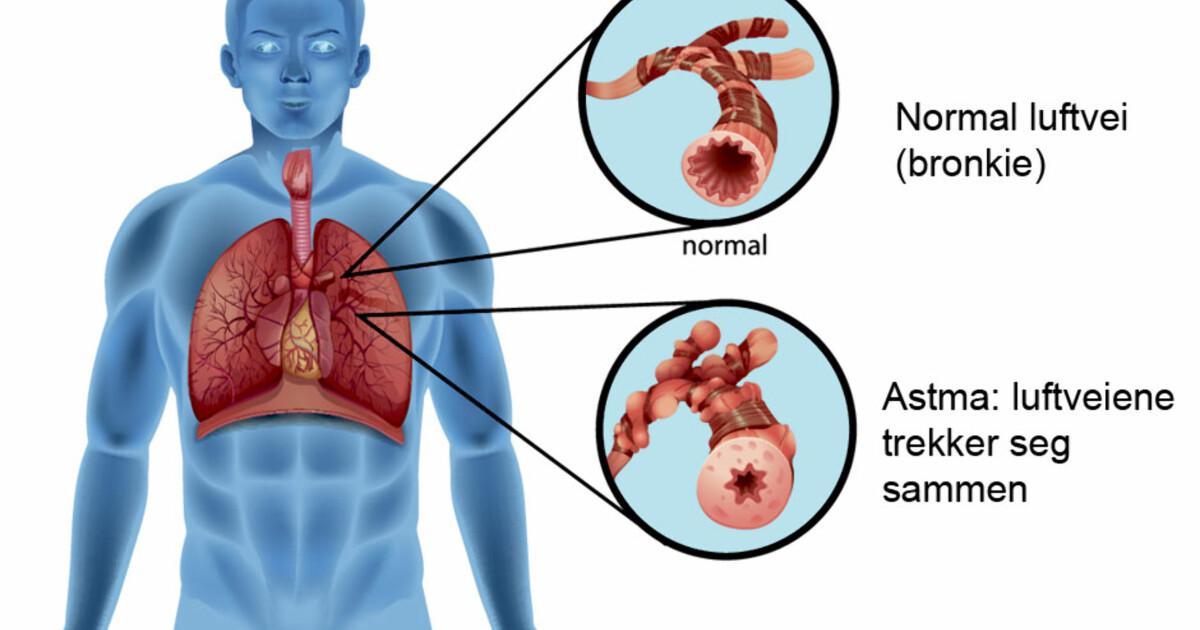 Astma forkjølelse