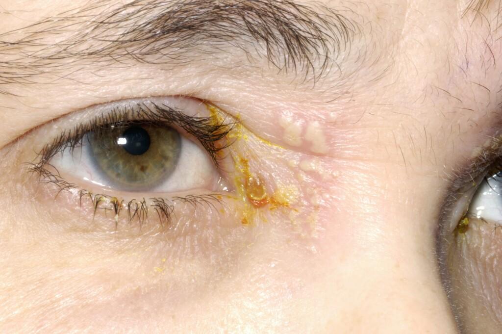 HERPESINFEKSJON: For de fleste mennesker er herpes øyeinfeksjon forårsaket av herpes simplex type 1. Dette er det samme viruset som forårsaker forkjølelsessår på leppene, Foto: NTB/Scanpix, Science Photo Library