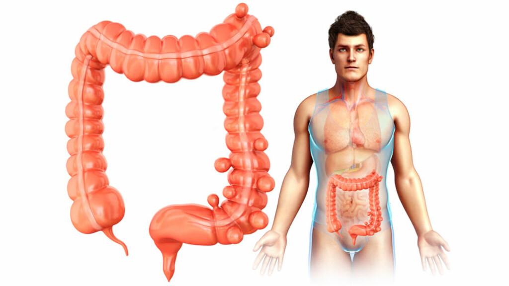 DIVERTIKKELSYKDOM: Divertikler er utposninger på tarmen. De kan gi magesmerter, blø og bli betente.  Foto: NTB Scanpix / Science Photo Library