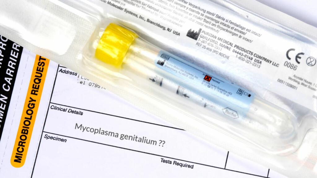 TEST: Ved symptomer på mycoplasma genitalium, kan kvinner testes for sykdommen med via en prøvepinne opp i skjeden, som vist på bildet. Menn testes via en urinprøve. Foto: NTB Scanpix / Science Photo Library