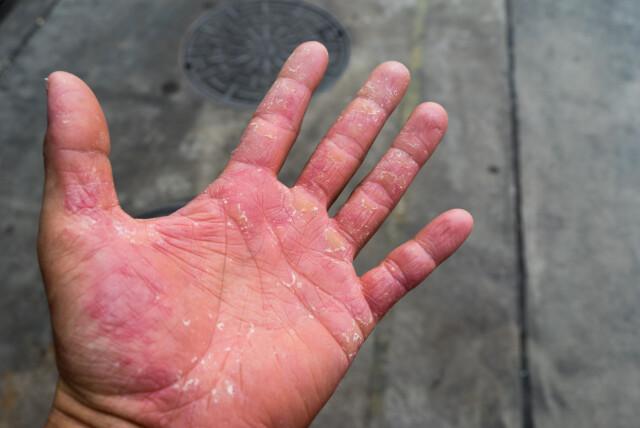 Kløe på fingrene