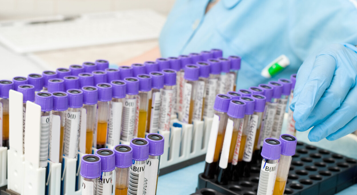 BLODPRØVE: Om du har høyt eller lavt stoffskifte måles ved en blodprøve Foto: NTB Scanpix