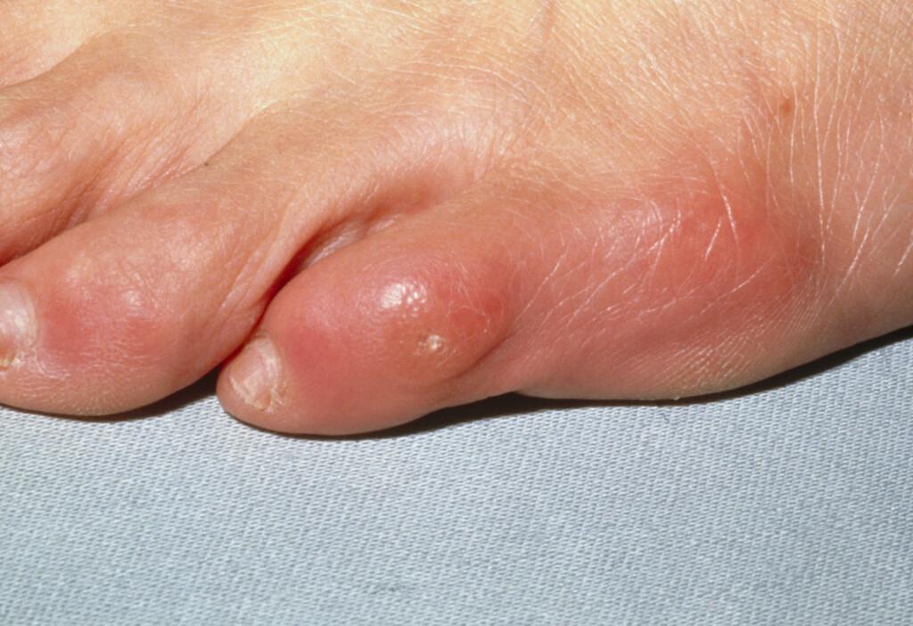 PLAGSOM: Liktorn er veldig vanlig og kan gi store plager og smerter.  Foto: Scanpix