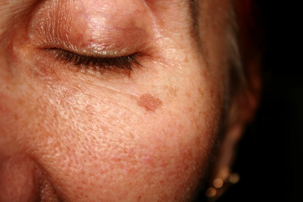 PIGMENTFLEKKER: P-piller kan i sjeldne tilfeller gi utslett i form av brunaktige flekker i ansiktet. Foto: Shutterstock