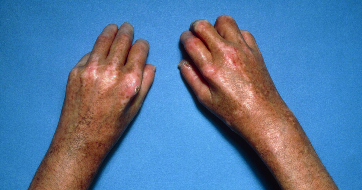 tørr hud på forhud