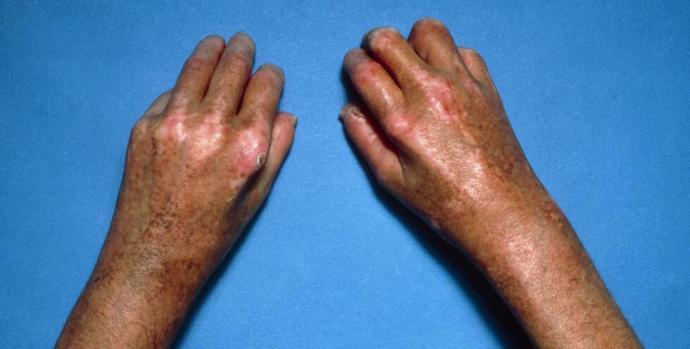 SYSTEMISK SKLEROSE: Kjennetegnes ved stram og hard hud. Foto: NTB Scanpix