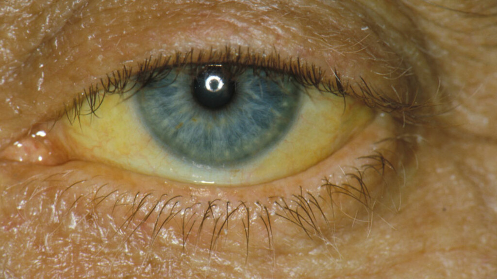GULE ØYNE: Begynnende gulsott ses ofte først som gulfarging av det hvite i øyet. Dette kan være et symptom på at leveren ikke fungerer slik den skal, eller annen sykdom. Foto: NTB Scanpix / Science Photo Library