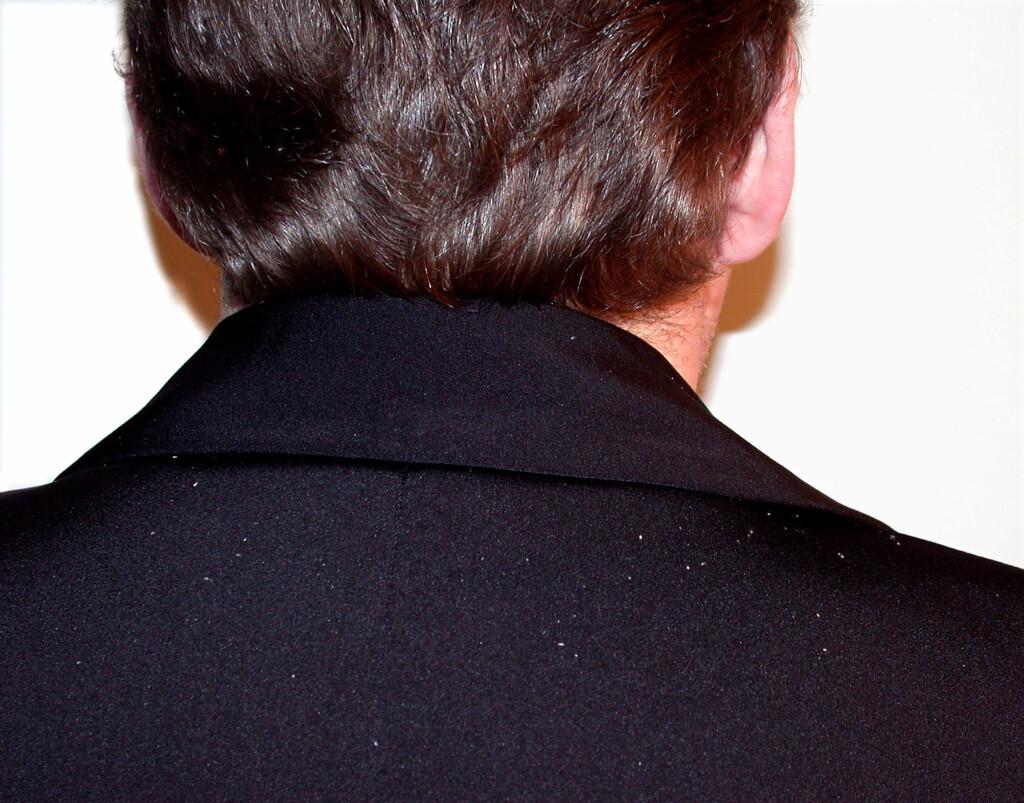 VANLIG PROBLEM: Mange mennesker er plaget med flass.  Foto: Scanpix