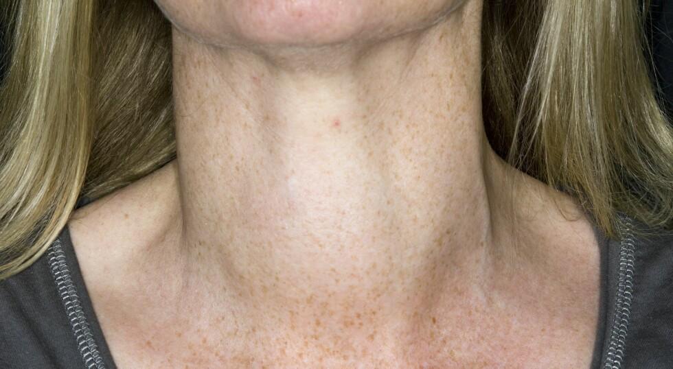 <b>STRUMA:</b> Struma fører til hevelse på halsen Foto: NTB Scanpix