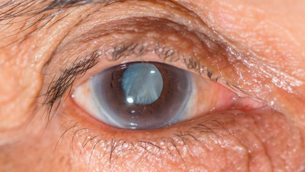GRÅ STÆR: Her blir grå stær påvist gjennom en øyeundersøkelse. Linsen blir uklar og pupillen kan noen ganger få en melkefarget slør. Foto: NTB Scanpix/Shutterstock