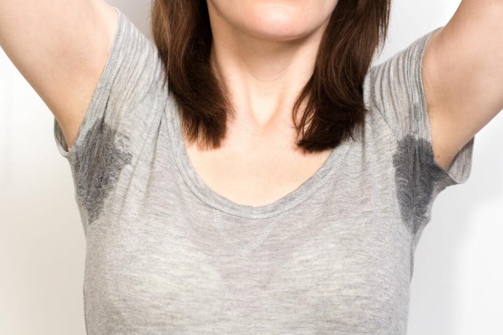 Overdrevet svetting: Personer som svetter mye kan oppleve det som et problem Foto: NTB Scanpix