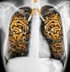bivirkninger ved røykeslutt