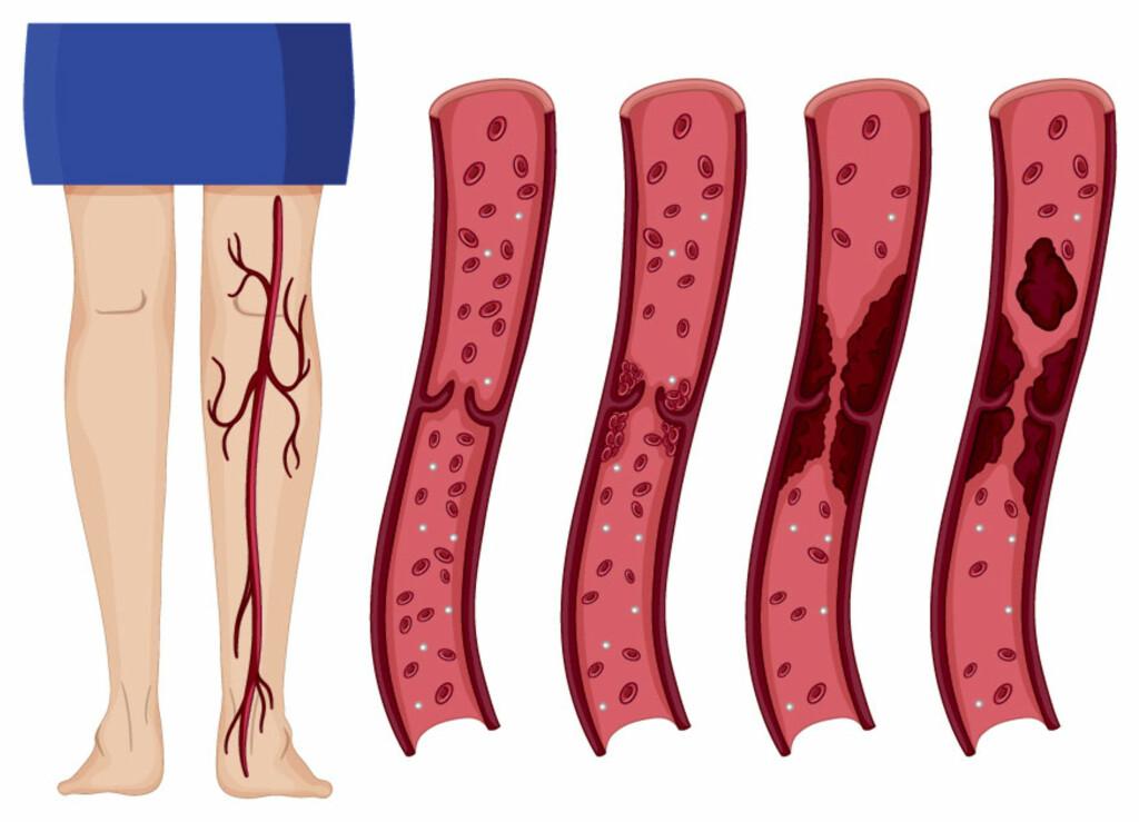SLIK DANNES EN BLODPROPP: Blodceller klebrer seg sammen, og kan gjøre blodåren trang, slik at blodstrømmen hindres. Den siste illustrasjonen viser at en del av blodproppen løsner, en emboli som kan ende opp å tette en blodåre i lungene. Foto: NTB Scanpix/Shutterstock