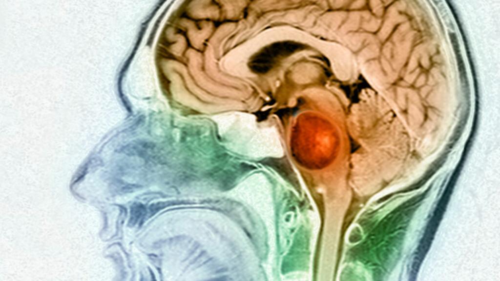 MR-BILDE AV HJERNESVULST:  fargelagt for å vise en stor hjernesvulst nær hjernestammen hos 39 år gammel mann. Foto: NTB Scanpix / Science Photo Library