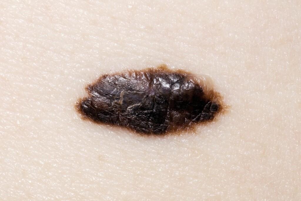 ONDARTET FØFLEKK: Eksempler på malign melanoma - dette er føflekkreft.  Foto: NTB Scanpix/Science Photo Library