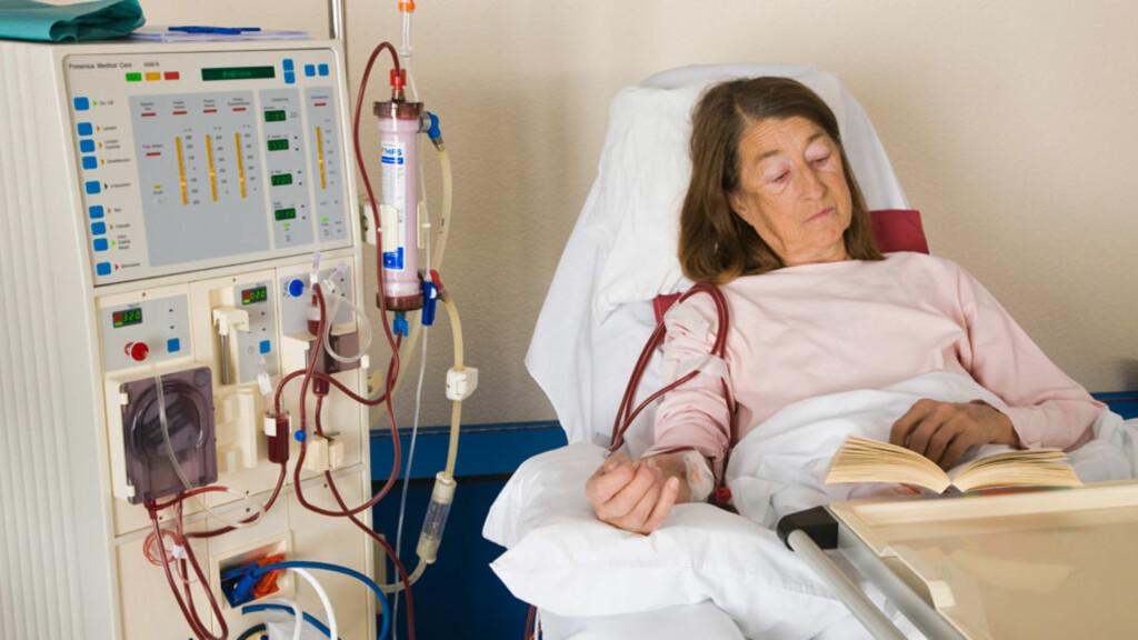 AKUTT NYRESVIKT: Man blir raskt veldig syk og trenger sykehusbehandling. På bildet dialysebehandling (Hemodialyse). Foto: NTB Scanpix/Age v. Ken Welsh