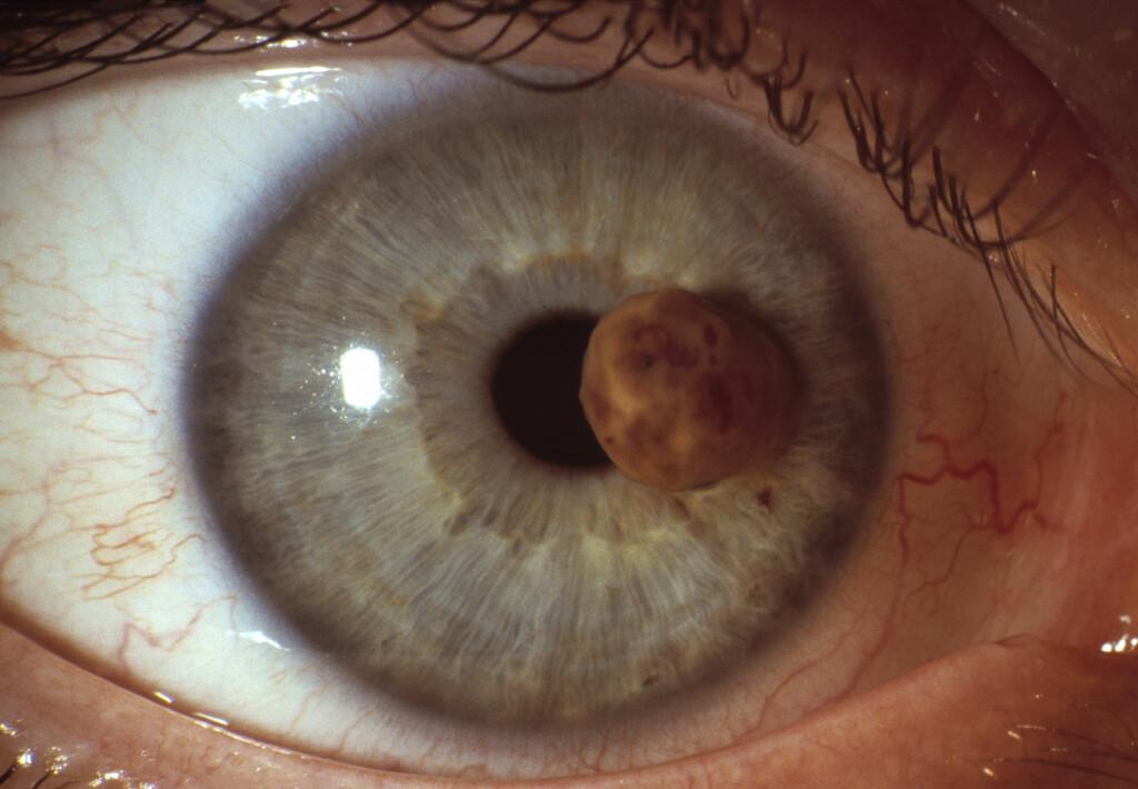 UVEALT MALIGNT MELANOM: Irismelanomer kan være synlig fra utsiden. Foto: Science Photo Library