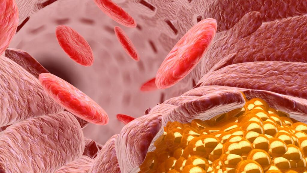 HYPERLIPIDEMI: Illustrasjon av kolesterol (gul farge) i en blodåre. Kolesterol er et lipid, en fett-lignende substans. Høye blodverdier av LDL kolesterol gir risiko for aterosklerose, hjerteinfarkt og slag. Foto: NTB Scanpix / Science Photo Library