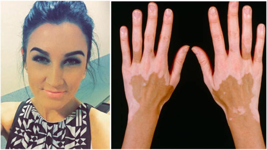 VITILIGO: Flekkene til Miriam Lauritsen vises godt når hun går i bikini. Bildet til høyre viser vitiligo på hendene til en ung mann.  Foto: Collage: Privat og Science Photo Library