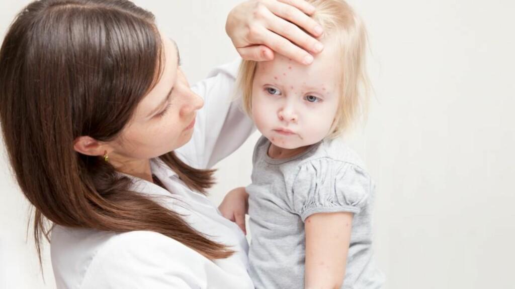 BARNESYKDOMMER: Feber og utslett er gjengangere blant flere av sykdommene.  Foto: NTB Scanpix
