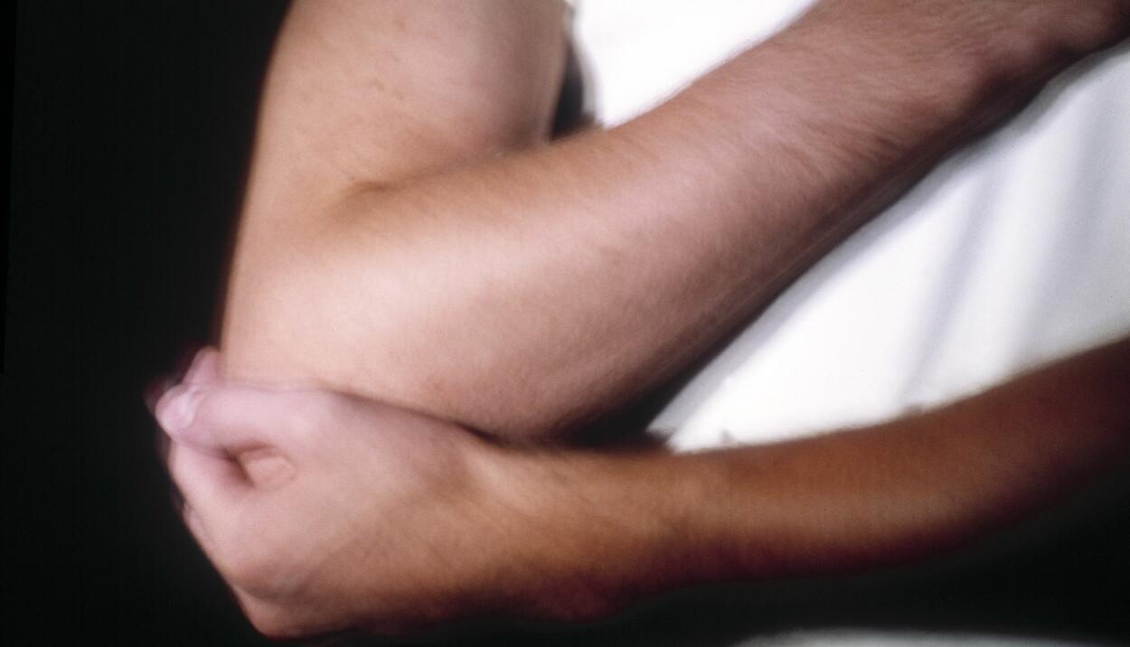 SMERTEFULLT: Tennisalbue ble inntil nylig også kalt musearm, men denne betegnelsen brukes ikke lenger da den setter et feilaktig sterkt søkelys på bare en av mange mulige årsaker. Foto: NTB/Scanpix, Lisbeth Holtan