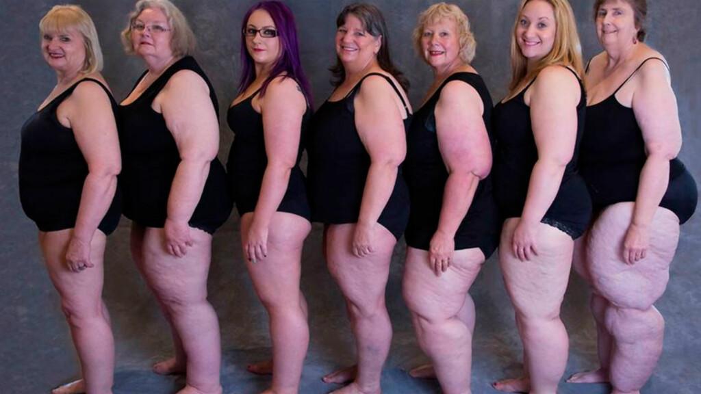 """LIPØDEM: """"Pæreformen"""" er ikke alltid tegn på overvekt eller fedme. Disse australske kvinnene har diagnosen lipødem og ønsker at flere skal ha kunnskap om sykdommen.   Foto: Judy Hudson / Lipoedema Australia"""