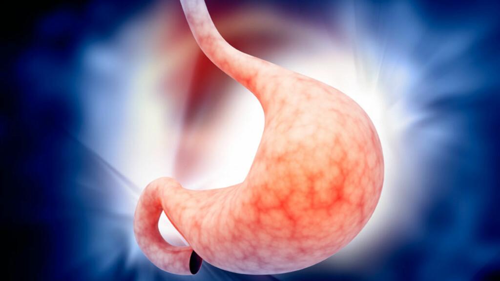 SPISERØRET: Øverst på bildet: Spiserør. Nederst: magesekk. Magesyre i spiserøret kan gi spiserørsbetennelse. Foto: NTB Scanpix/Shutterstock (illustrasjon)