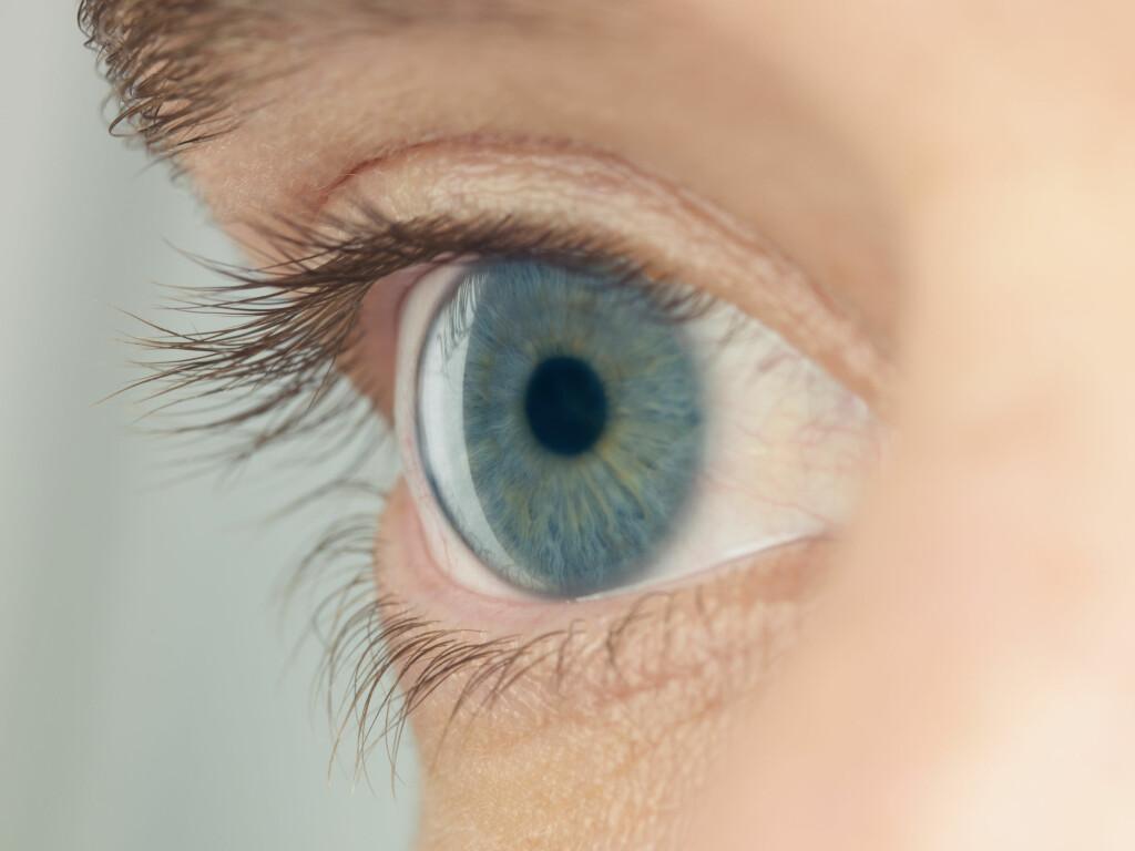 TØRRE ØYNE: Tilstanden tørre øyne gir ubehag ogsynsforstyrrelser. En ustabil tårefilm kan potensielt skade øyets overflate. Foto: Scanpix