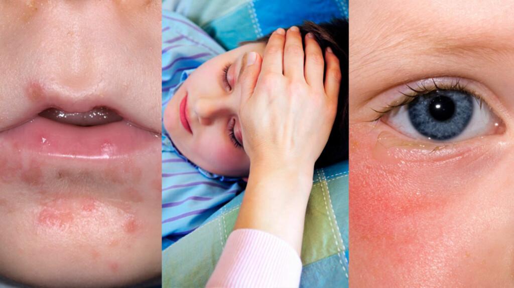 ANBEFALINGENE FOR Å REDUSERE SMITTE: Følg reglene og unngå smitte.  Foto:  NTB scanpix