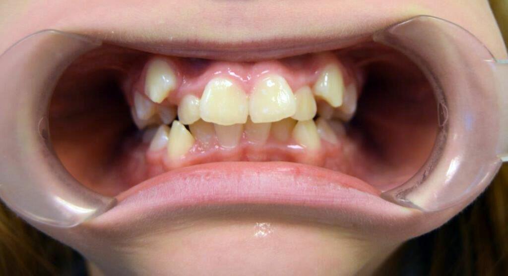 TRANGSTILTE TENNER: Dette er den vanligste tannstillingsfeilen. Hjørnetennene får ikke plass i tannbuen og blir liggende i hulter til bulter.  Foto: Privat