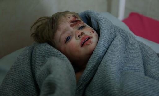 SKADD: På det provisoriske sykehuset i Misraba, like utenfor hovedstaden Damaskus, kom det mange syriske skadde barn inn i dag. Foto: Hasan Mohamed / Afp / Scanpix