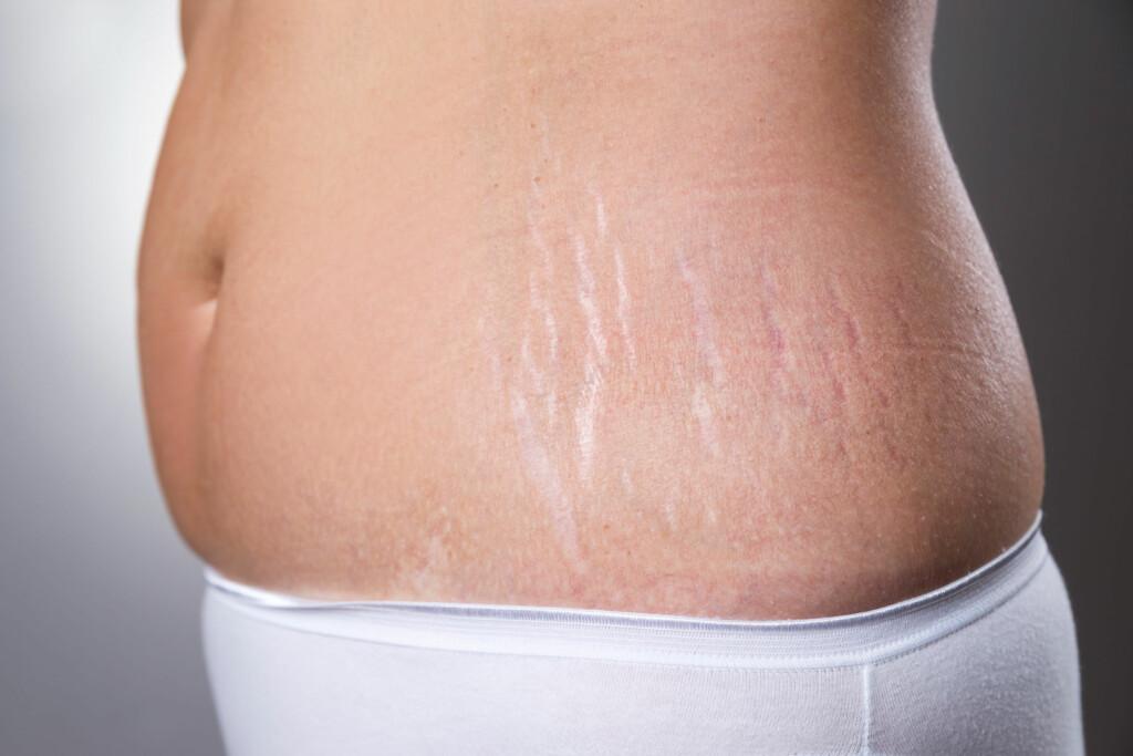 STREKKMERKER PÅ HOFTENE: Ved rask vekst, som for eksempel hos jenter i puberteten, kan strekkmerker oppstå på hofter, mage og bryster. Foto: NTB Scanpix/Shutterstock