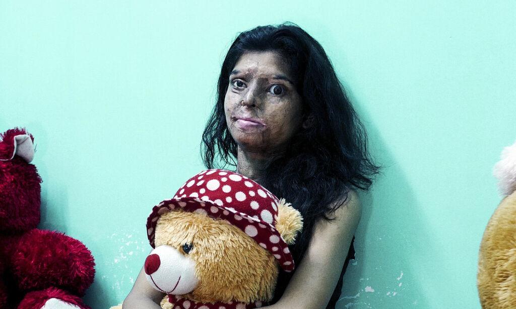 image: Da Ritu avviste fetteren, ble hun brutalt angrepet med syre