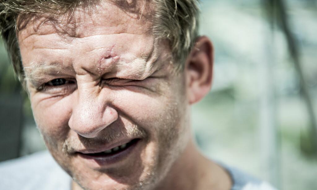 ARR: Tidligere fotballspiller Steffen Iversen slapp stort sett fra ulykken med skrekken - og et mindre arr. Foto: Thomas Rasmus Skaug / Dagbladet
