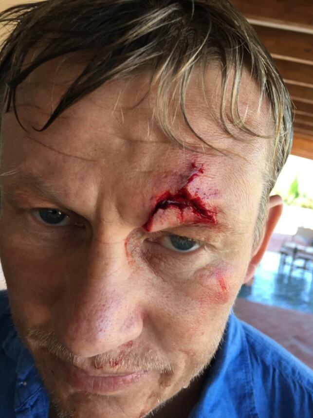 - HUDEN HANG: Steffen Iversen ble fraktet til sykehuset etter at han pådro seg et alvorlig kutt ved øyenbrynet. Foto: Privat