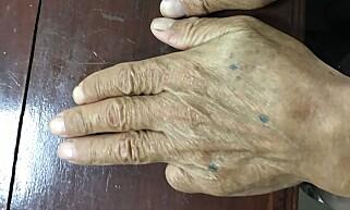 INGEN FINGER: Den avkappede lillefingeren på venstrehånden var også med på å identifisere rømlingen Shigeharu Shirai. Foto: AFP PHOTO / THAI ROYAL POLICE / Handout / NTB scanpix