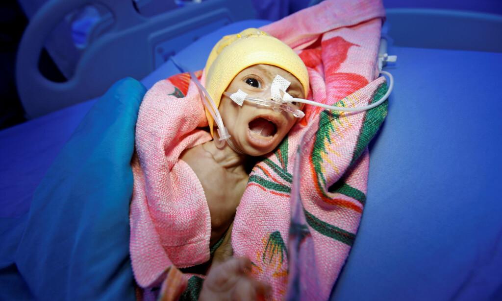 SULTENS ANSIKT. To måneder gamle Nadia Ahmad Sabri er et av sultens ofre i Jemen. Foto: REUTERS / NTB Scanpix