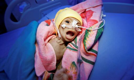 UNDERERNÆRT: Nadia Ahmad Sabri er 60 dager gammel, og lider av kraftig underernæring. Hun er blant de heldige, som faktisk får behandling på et senter for underernæring i havnebyen Hodeida. Foto: Abduljabbar Zeyad / Reuters / Scanpix