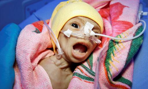 image: Fem barn drepes eller skades i Jemen-krigen hver dag