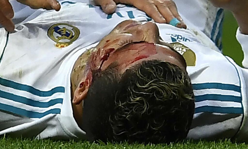 image: Ronaldo sparket til blods da Real Madrid knuste Deportivo