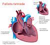 svakt hjerte symptomer