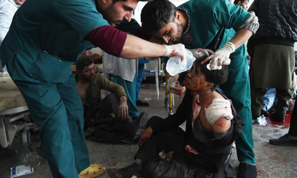 MANGE ANGREP: Afghanere er vant med krig og konflikt i tiår etter tiår, men opplever en økning i antall angrep den siste tida. Her behandler medisinsk personale en mann som ble skadet da en bilbombe gikk i lufta i hovedstaden Kabul forrige helg. Foto: Wakil Kohsar / AFP / NTB Scanpix