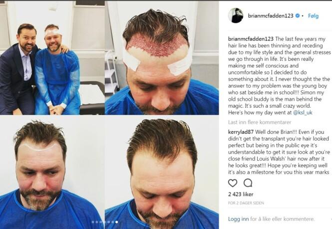 HÅRTRANSPLANTASJON: Brian Mc Fadden deler åpenhjertig bilder fra operasjonen med de 100 000 følgerne sine. Foto: Brianmcfadden123/Instagram
