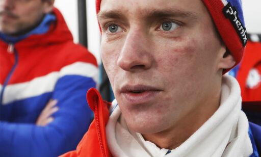 image: Fannemel fikk en OL-knekk: - Forferdelig