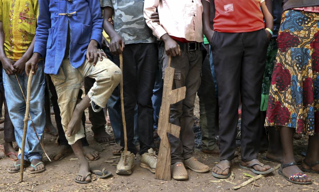 FÅR HJELP: Tidligere barnesoldater venter på å bli registrert av UNICEF. Foto: Sam Mednick / AP / NTB scanpix