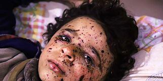 image: Sykehusene blir lagt i grus og hjelpearbeiderne kollapser mens barna dør rundt dem