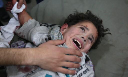 MASSIVE ANGREP: Innbyggerne i det opprørskontrollerte området Øst-Ghouta har snart i to uker levd under massive bombeangrep. Her er en to og et halvt år gammel gutt, Mohammed Malas, som er på sykehus til behandling etter å ha blitt skadd av en av bombene. Foto: Ammar Suleiman / Afp / Scanpix
