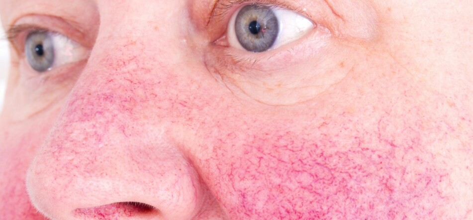 UTSATT I KULDEN: Særlig ansiktshuden er utsatt i kulden, som blant annet kan føre til sprengte blodkar og i verste fall varige frostskader. Foto: Scanpix.